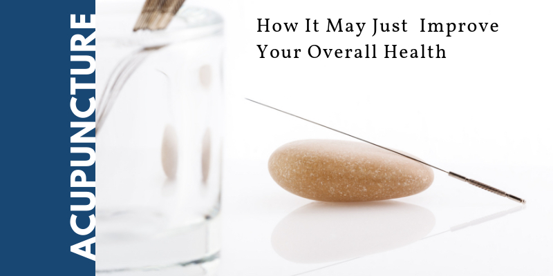 How Acupuncture Can Improve Your Overall Health